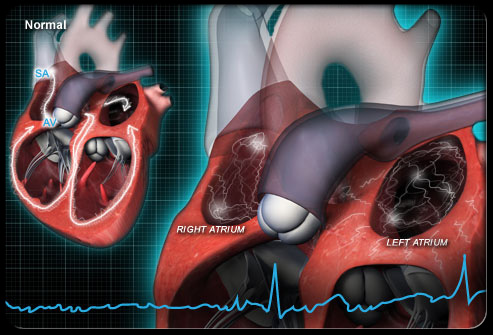 atrial-fibrillation-s3-photo-of-heart-rhythm.jpg